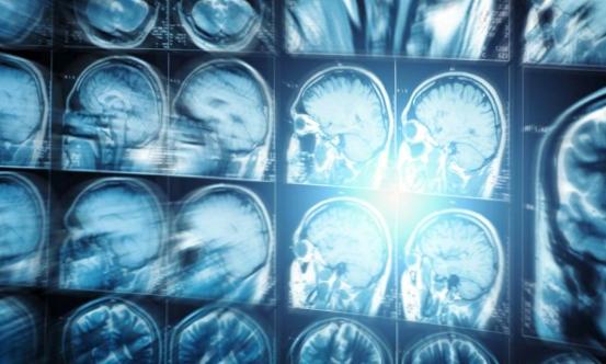 неврологические заболевания